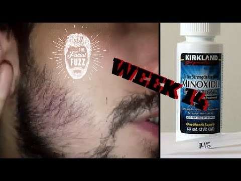 Minoxidil Beard | Week 14 | The Experiment |  #FacialFuzzFridays