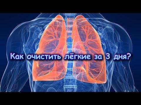 Хроническое обструктивное заболевание легких (ХОЗЛ