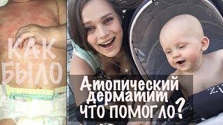 ЛЕЧЕНИЕ АТОПИЧЕСКОГО ДЕРМАТИТА - Semenova