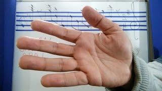 Nas palmas mãos varizes das