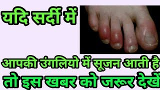 Winter skin care routine  how to remove swelling in winter genius hacks for winter
