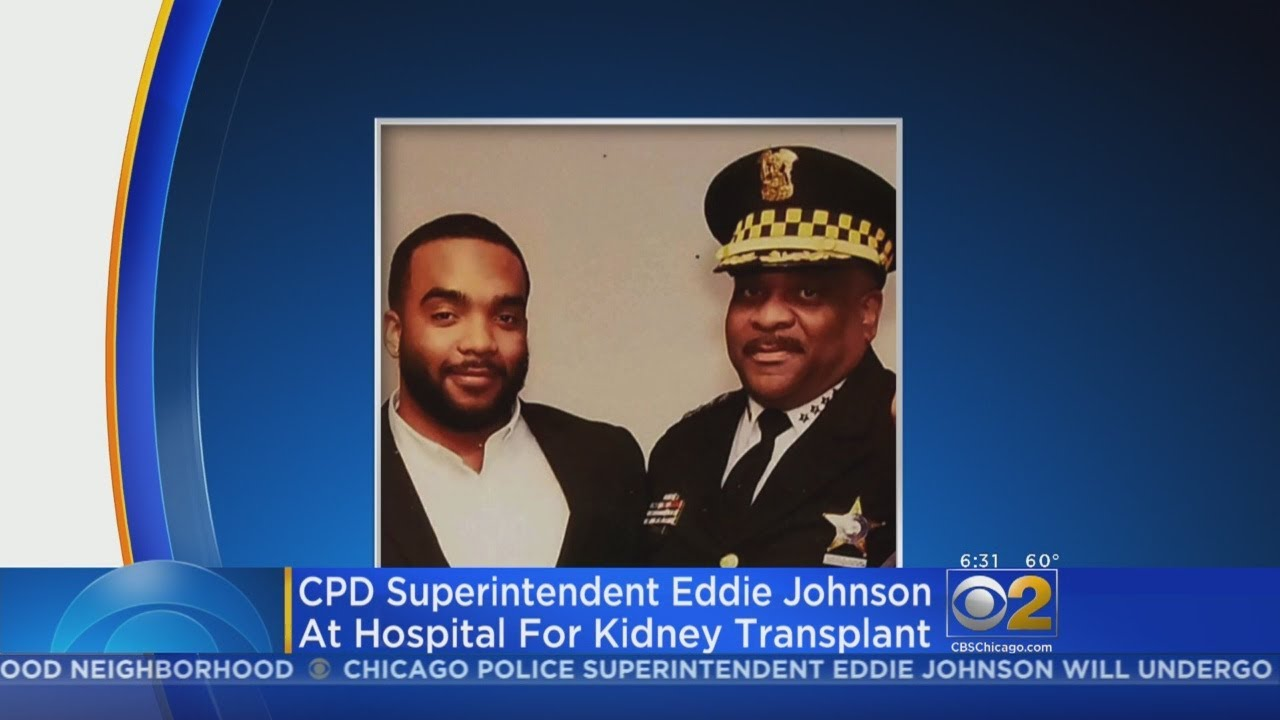 Top Cop Eddie Johnson To Get New Kidney From His Son On Wednesday