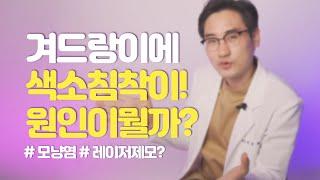 [Q&A] 겨드랑이에 색소침착! 레이저가 원인?…