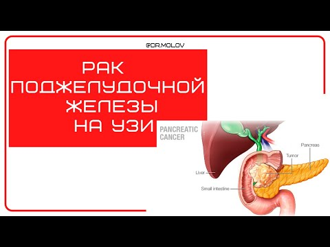 Рак поджелудочной железы на УЗИ