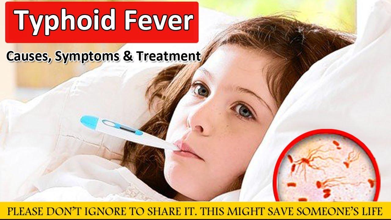 Typhoid fever: causes, symptoms, treatment 39