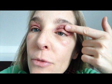 Augenlidstraffung Ohne OP – Tag 2 Nach Der Lidkorrektur Erfahrungen