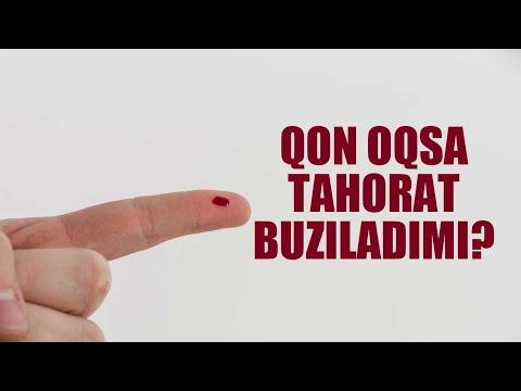 """Savol-javob: """"Qon Oqsa Tahorat Buziladimi?"""" (Shayx Sodiq Samarqandiy)"""
