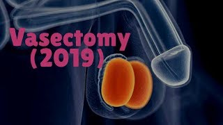 Vasectomy 2019  (Health Story)