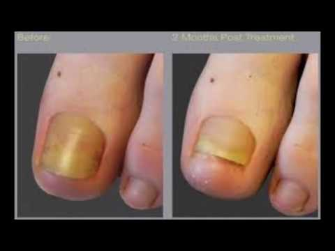 Toenails Fungi Treated With Oral Medication or Vicks VapoRub