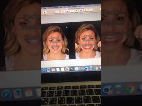 Dr Nour marshaha  .digital smile design demonstration