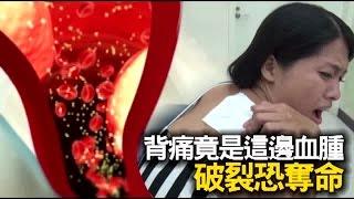 胸主動脈血腫破裂恐奪命 積極控制飲食改善 | 台灣蘋果日報