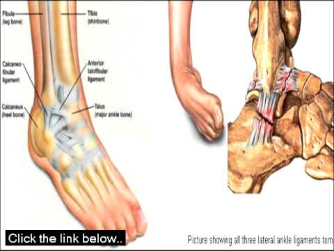 acute gout treatment uk reduce uric acid in blood gout medication medscape