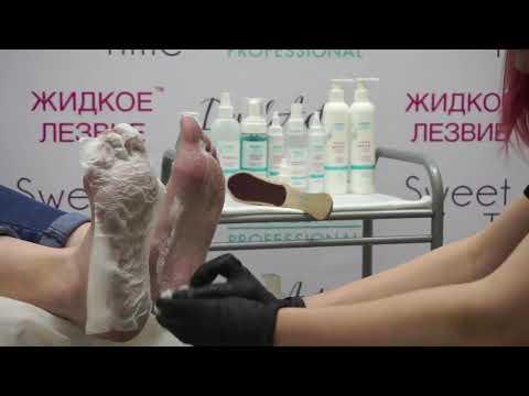 Процедура педикюра с использованием 'Жидкого лезвия пенного экспресс размягчителя'  Сухой педикюр