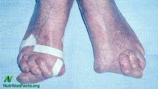 Se šípky proti osteoartróze