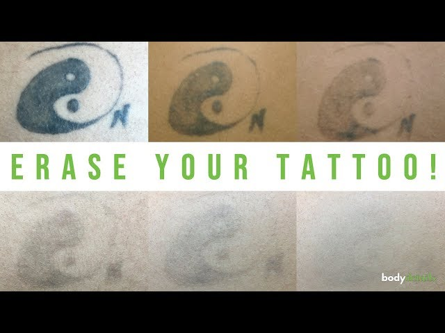Erase Your Tattoo with Laser | Natalia Lilly | Body Details