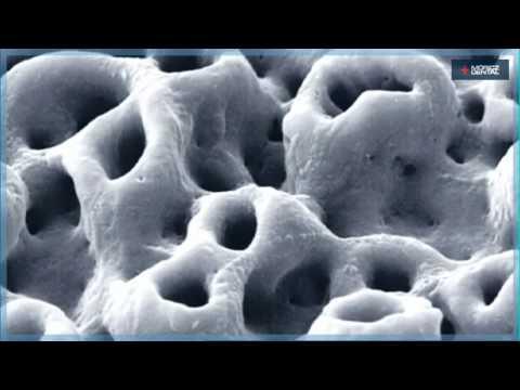 Így készülnek a Nobel Biocare implantátumok