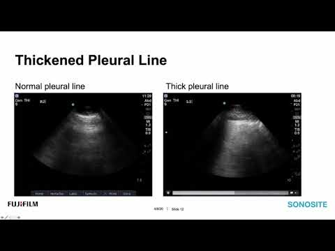 sonosite-ultrasound-webinar:-lung-ultrasound-for-the-covid-19-patient