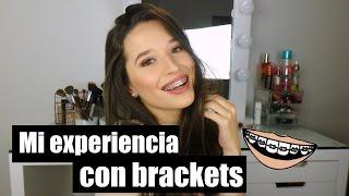 Mi Experiencia Con Brackets (Tips, Cuidado y Mas!) + Que Hay En Mi Kit Para Brackets | LAURA MEJIA