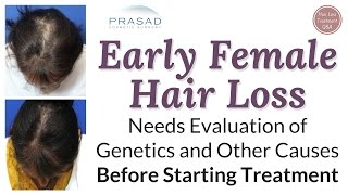 Treating Difficult Female Pattern Hair Loss Successfully in Over 99% of Patients