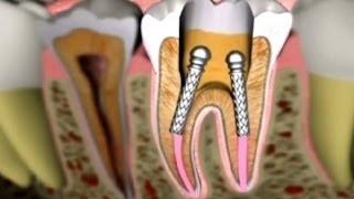 segíti a cla a zsírvesztést okoz-e fogyást a cpap