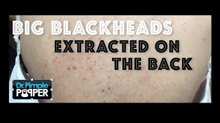 Zapętlaj Re-introduction to Big Blackheads on the Back | Dr. Sandra Lee (aka Dr. Pimple Popper)