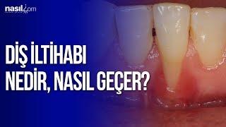 Diş İltihabı nedir ve nasıl geçer? | Sağlık | Nasil.com