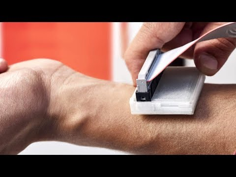 Skin cancer detector concept wins global design prize