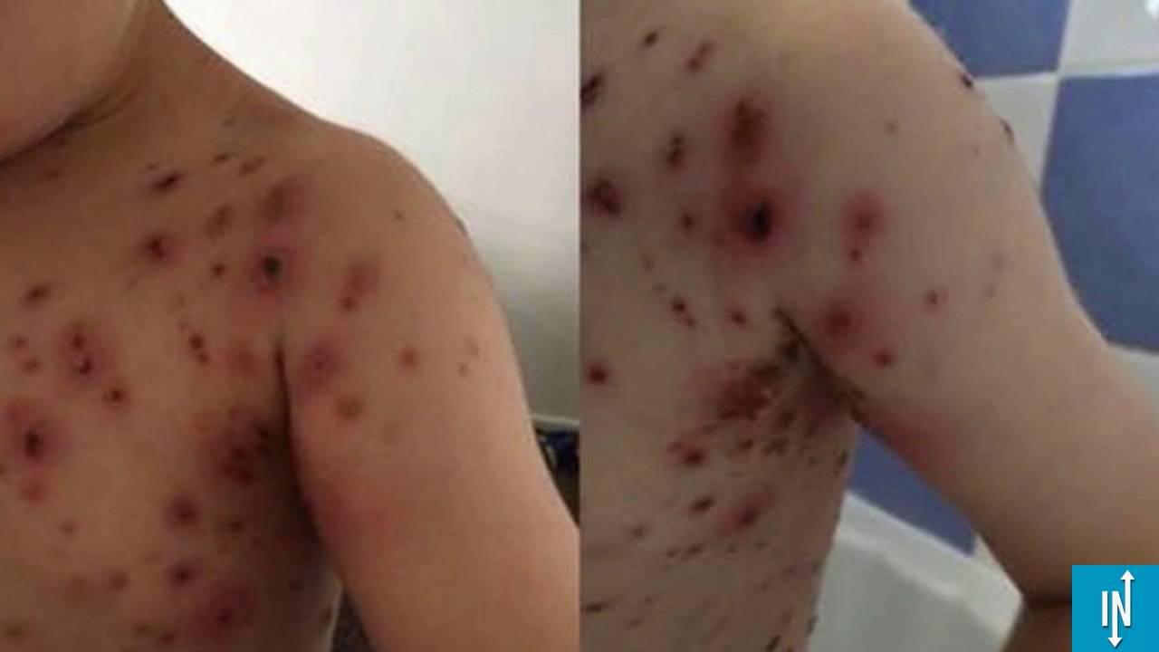 Les anti-inflammatoires à votre enfant s'il a la varicelle