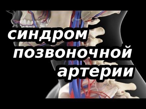СИНДРОМ ПОЗВОНОЧНОЙ АРТЕРИИ, причина и лечение.