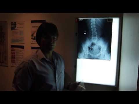 hqdefault - Hip And Back Pain Orthotics