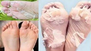 Basta 1 Aplicação Para Eliminar Rachaduras E pele Grossa Dos PÉS