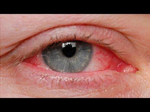 The Basics: Pinkeye Causes and Treatments