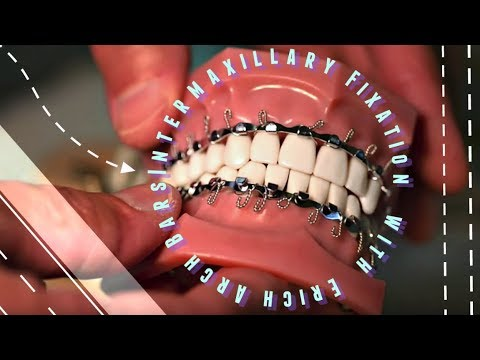 Intermaxillary Fixation with Erich Arch Bars on jaw clutch, jaw parts, jaw socket, jaw surgery procedures, jaw splint, jaw wired shut, jaw diagram, jaw suspension,