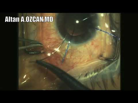Management of subluxated crystalline lens with severe loss of zonular support