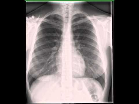 chest x ray Estimated reading time: 3 minutes  according to the national heart, lung and  blood institute, chest x-rays are the most common x-ray test used to diagnose.
