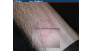 fungus on the skin