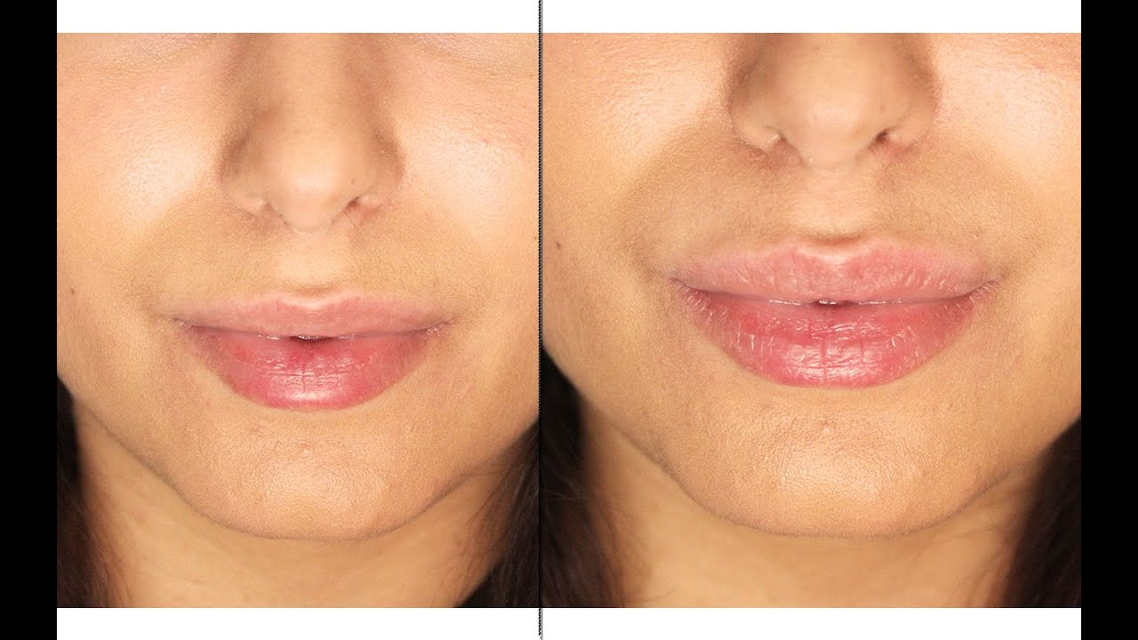 How To Get Smaller Lips Naturally