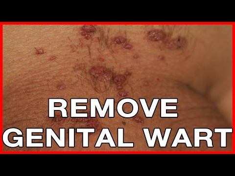 How to Remove Genital Warts? Laser Therapy, Oil Tree