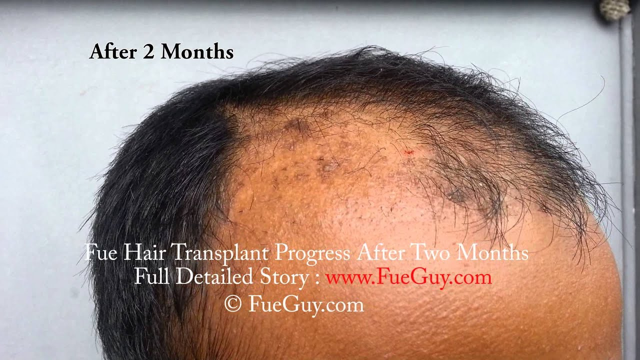 New Hair Growing After Two Months Of Fue Hair Transplant