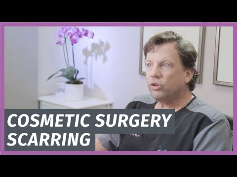 Cosmetic Surgery Scarring - Is It Worth The Trade Off?