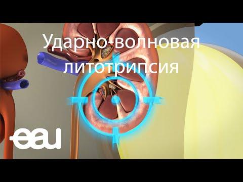 Ударно-волновая литотрипсия (EAU - SWL RU)