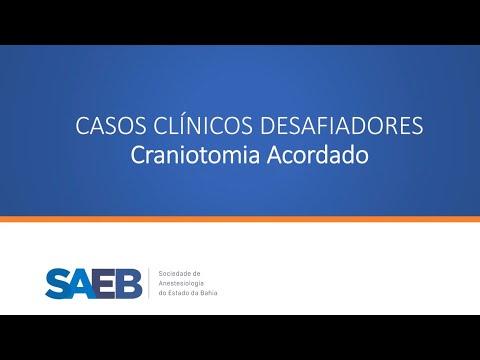 Craniotomia Acordado (parte 2)