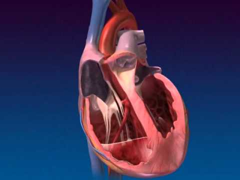 Congestive heart failure.flv
