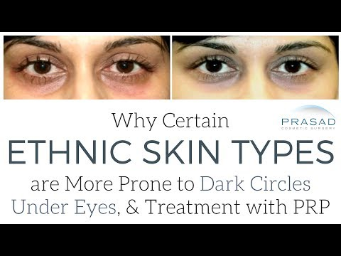 How Certain Ethnic Skin Types are More Prone to Under Eye Dark Circles, and How to Treat Them