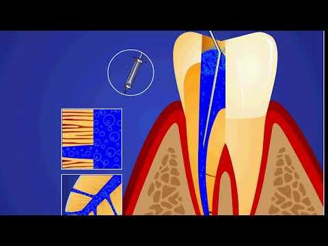 Как удаляется нерв из зуба?!