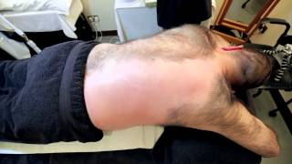Andrew's Sponsored Back Wax thumbnail