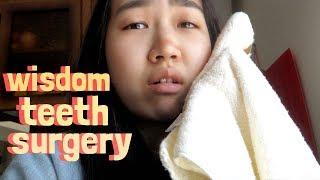 JEN AFTER WISDOM TEETH SURGERY | JensLife