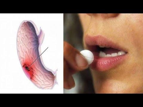 احذرو هذا الدواء يزيد من خطر الإصابة بسرطان المعدة 5 مرات !