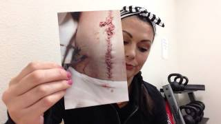 Sharing my story from my car accident on 2/14/14.