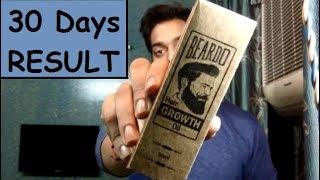 Beardo Hair Growth Oil Results After 30 days